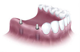 Partial jaw implant