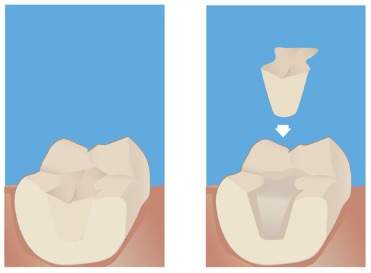 Crowns, Onlays and Inlays Explained - New York Cosmetic Dentists ...